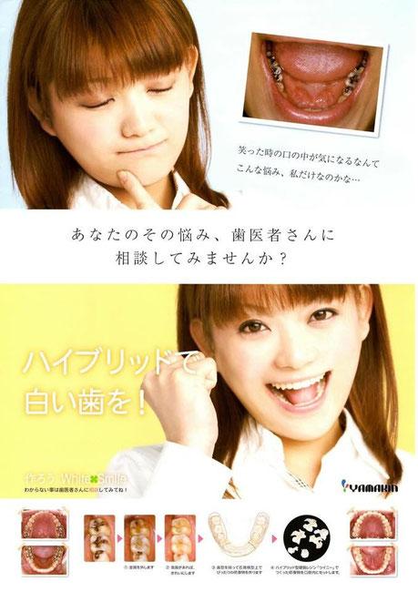 茨木市 永井歯科医院 CAD/CAM冠 保険適応