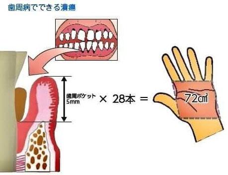 茨木市 歯周病専門医 永井歯科医院