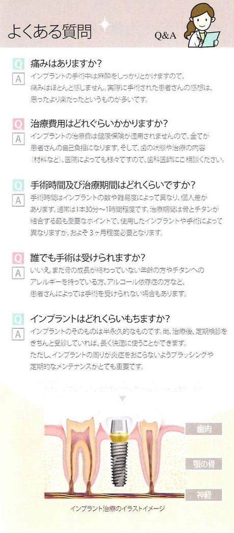 インプラント 茨木市 永井歯科医院 よくある質問