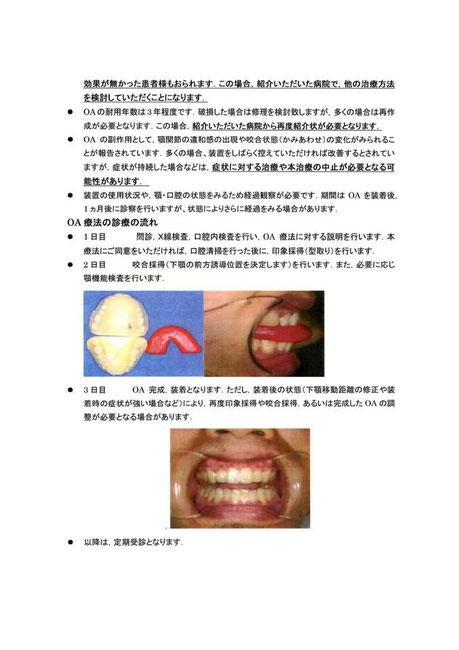 睡眠時無呼吸症候群 治療の流れ 永井歯科医院 茨木市