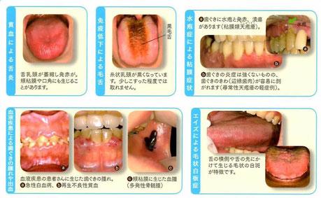 口腔外科 口腔粘膜疾患 茨木市 永井歯科医院