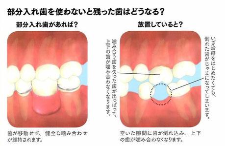 部分入れ歯 歯科 茨木市 永井歯科医院