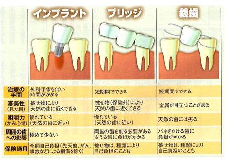 インプラント 比較画像 永井歯科医院 茨木市