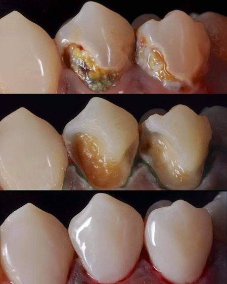虫歯治療 茨木市 永井歯科医院 歯科一般