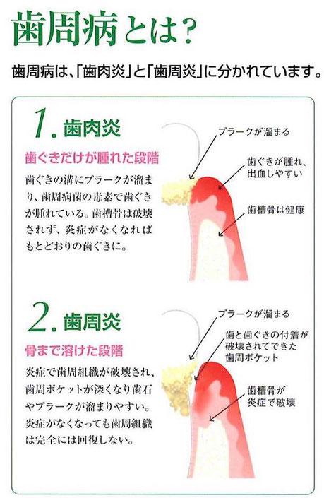 歯周病治療 茨木市 永井歯科医院