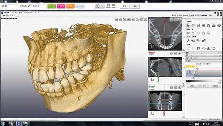 歯科用CT撮影 永井歯科 茨木市 画像診断