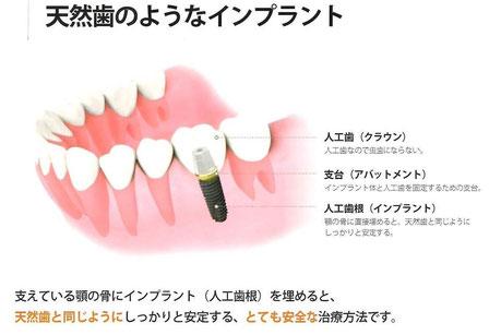 天然歯のようなインプラント 永井歯科医院 茨木市