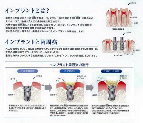 インプラント 永井歯科医院 茨木市 診療科目