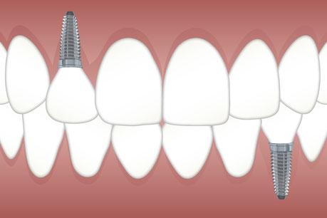 Teeth implants in Kiev