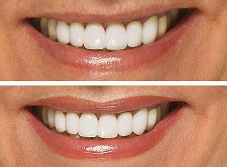 Perfilado de labios y correción de simetría