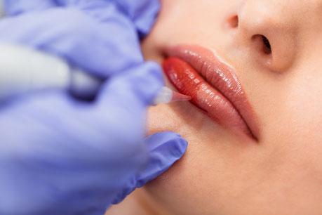 Permanent Make Up Lippen waehrend Behandlung