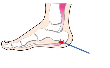 踵の痛み 足裏の痛みには、足底にある筋肉や靭帯にかかるストレスが関係しています。