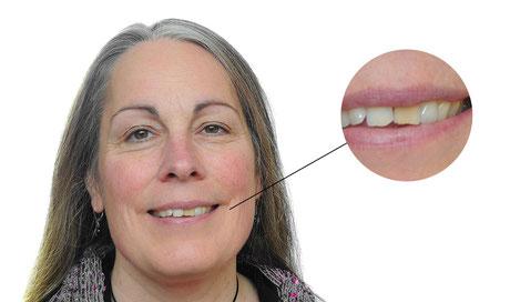 Einzelne dunkle Zähne können sehr auffällig sein. Nach der Aufhellung kann man wieder unbefangen seine Zähne zeigen.