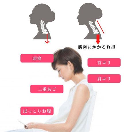 ストレートネックは首の筋力を低下させるたるみ原因