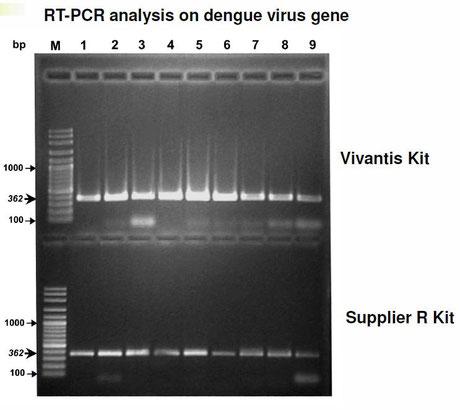 Isolierung viraler DNA und RNA