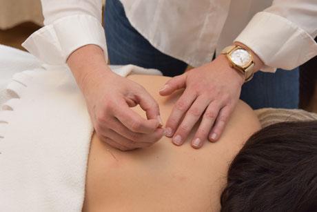 Akupunktur in Wettingen