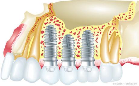 Implantat: Schraubenförmige Wurzel im Kiefer (oben) mit aufgesetzter Krone (unten)