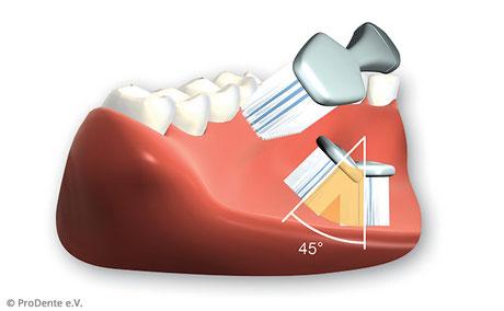 Borsten mit ca. 45 Grad Richtung Zahnfleisch ansetzen. Auf der Stelle rütteln. Dann auswischen.