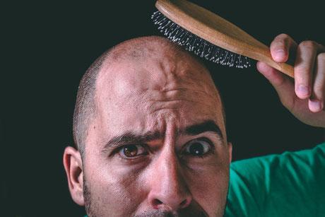 caída del cabello; alopecia; hombre; pelo del hombre; Barcelona;