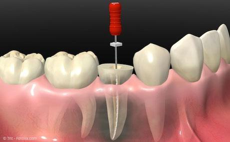 Wurzelbehandlung (Endodontie): Aufbau eines Zahnes