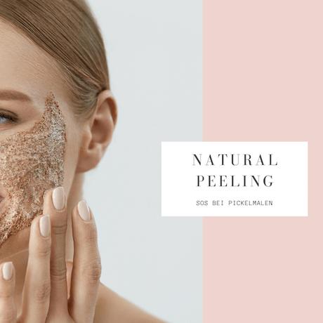 Peeling gegen Pickelmale