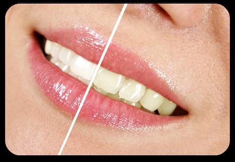Sichtbar hellere Zähne mit Bleaching (© karuka - Fotolia.com)