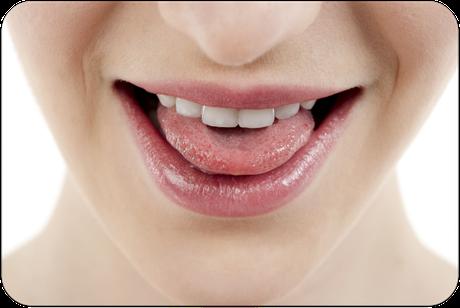 Leider oft vernachlässigt: Das Reinigen der Zunge! Welche Folgen kann das haben? (© Dan Kosmayer - Fotolia.com)Dr. Udo Goedecke. Zahnarzt in Osnabrück