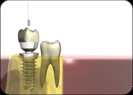 Implantat: Schraubenförmige Wurzel im Kiefer (unten) mit aufgesetzter Krone (oben) (© Markus Kretschmar - Fotolia.com)Dr. Udo Goedecke. Zahnarzt in Osnabrück