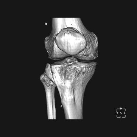 膝の骨折 自転車転倒