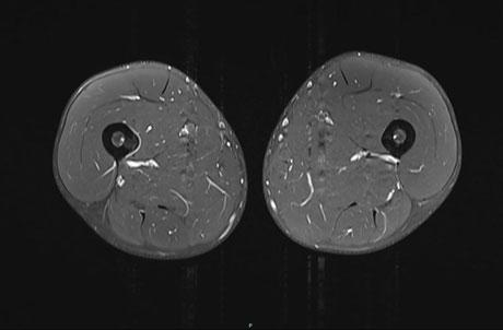 MRI des Oberschenkels, die weisse Linie um den Knochen links indiziert eine Stressreaktion
