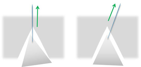 母指多指症 三角弁の挿入法