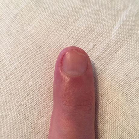 2週間ほど前に包丁で爪を削いでしまった、、、で、鋭角な変形爪になってしまったんで、深爪にはなるけど、爪切りでマイルドにカット、、、結果モノがつまめません! 爪ってすげ~大事なんですね。。。。