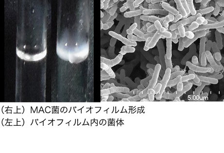 MAC菌の病原性発現機構の解明
