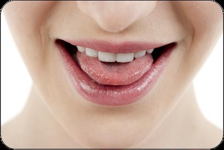 Leider oft vernachlässigt: Das Reinigen der Zunge! Welche Folgen kann das haben? (© Dan Kosmayer - Fotolia.com)