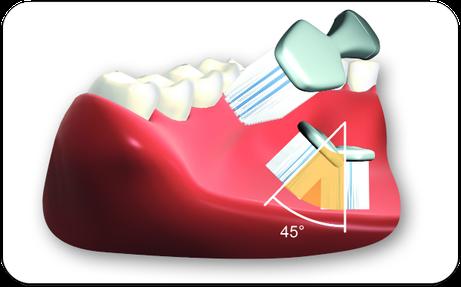 Borsten mit ca. 45 Grad Richtung Zahnfleisch ansetzen. Auf der Stelle rütteln. Dann auswischen. (© proDente e.V.)