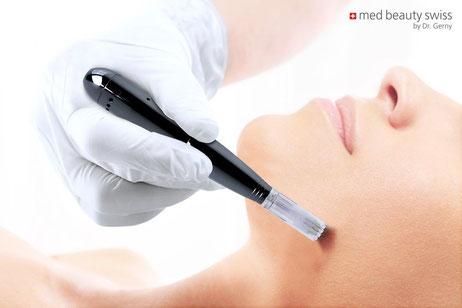 Microneedling ist die beste Behandlung zur Verschönerunng ihrer Haut. Mit den besten medizinischen Kosmetikprodukten wird das Needling von einer Fachspezialistin in Hauttherapie durchgeführt.