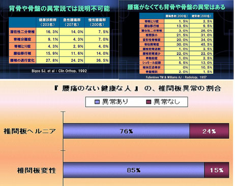 TMSジャパン資料より