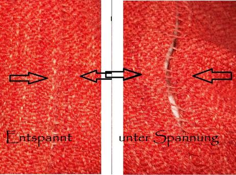 die sogenannte Thorsbergnaht, eine elastische Handnaht, die sich dehnen und wieder zusammen ziehen kann