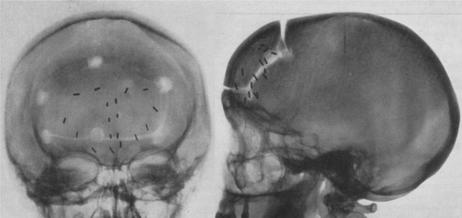 Figure 3 - Radiographies post-topectomie des aires 10, on voit le volet de craniotomie frontale et les limites des résections corticales grâce aux clips métalliques [37].