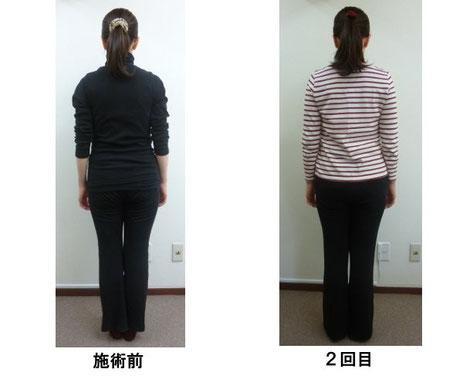 産後の腰痛、肩凝り