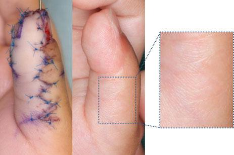 母指多指症のジグザグ型のきずあと