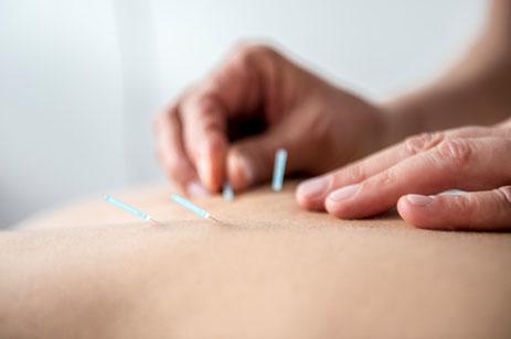 Teil der Traditionellen Chinesischen Medizin ist die Massagekunst