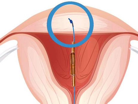 Gynefix® - Kadın Hastalıkları ve Doğum Uzmanı