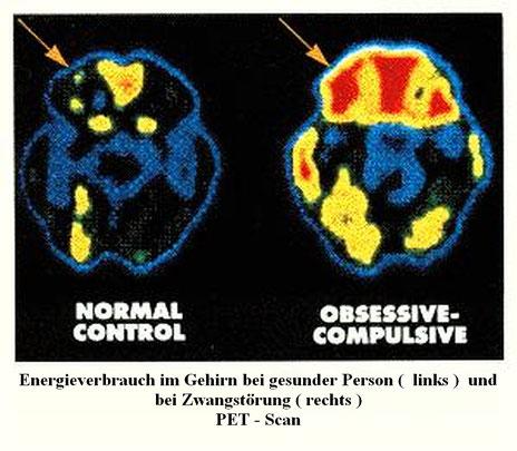 PET  Darstellung des Energieverbrauchs im normalne Gehirn versus Zwangsstörung