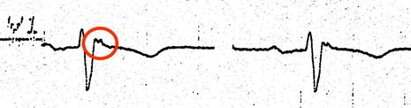 EKG ARVCM Arrhythmogene Rechtsventrikuläre Kardiomyopathie Epsilon Welle
