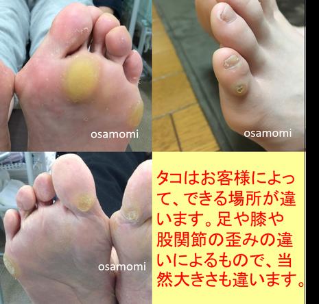 昭島市でタコ魚の目専門治療 オサモミ整体院 拝島駅から無料送迎サービス