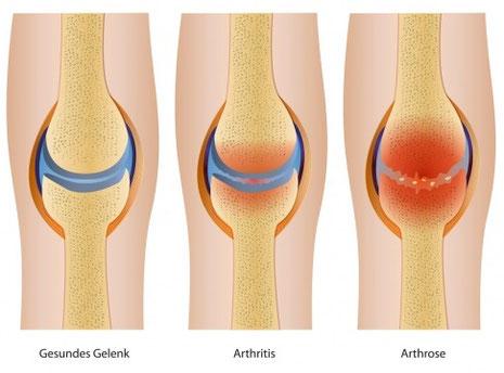arthrosemedikamente, arthritismedikament, arthrose und arthritis schmerzen lindern