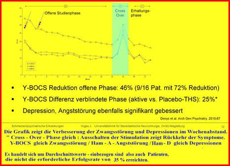 Behandlungserfolg der Tiefen Hirnstimulation bei Zwangsstörung und Co - Erkrankung Depression  und Angststörung - Klicken für Vergrößerung