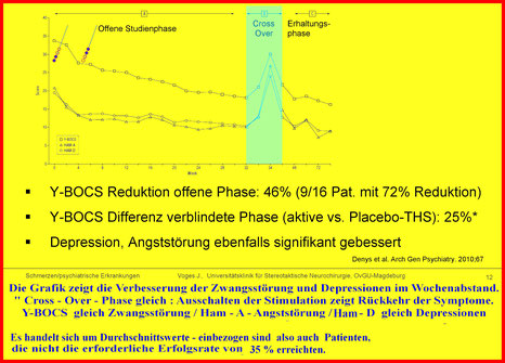 Behandlungserfolg der Tiefen Hirnstimulation bei Zwangsstörung - Zusammenwirken zwischen THS und Therapie