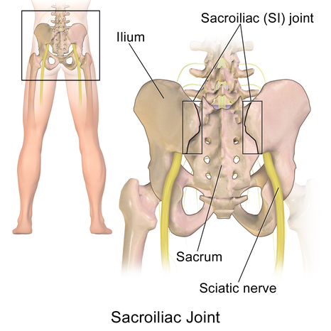 *Sacroiliac joint=仙腸関節、Sacrum=仙骨、Ilium=腸骨